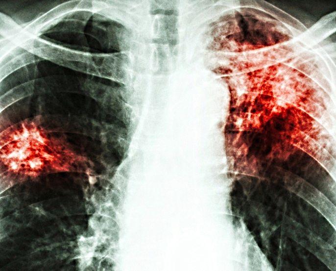 Deputații au votat Legea Tuberculozei